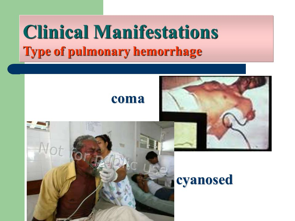 Clinical Manifestations Type of pulmonary hemorrhage cyanosed coma