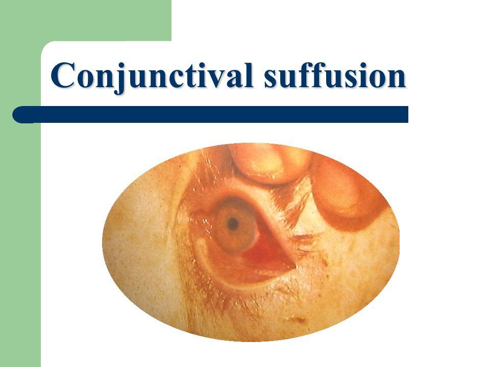 Conjunctival suffusion