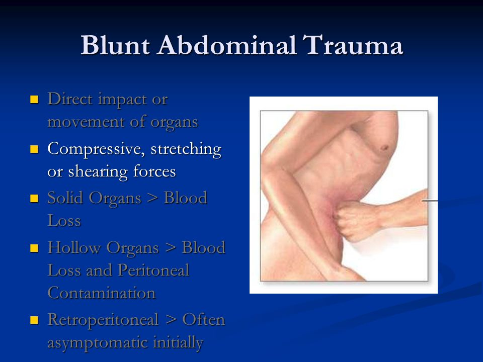 Blunt Abdominal Trauma Direct impact or movement of organs Direct impact or movement of organs Compressive, stretching or shearing forces Compressive, stretching or shearing forces Solid Organs > Blood Loss Solid Organs > Blood Loss Hollow Organs > Blood Loss and Peritoneal Contamination Hollow Organs > Blood Loss and Peritoneal Contamination Retroperitoneal > Often asymptomatic initially Retroperitoneal > Often asymptomatic initially