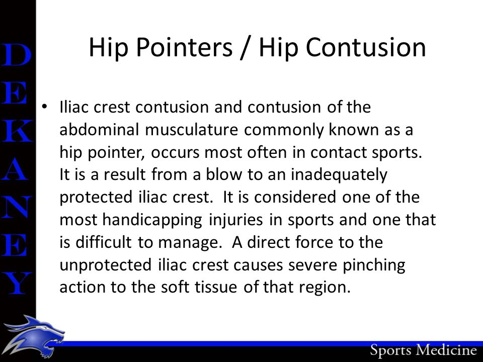 Hip Pointers / Hip Contusion Iliac crest contusion and contusion of the abdominal musculature commonly known as a hip pointer, occurs most often in contact sports.