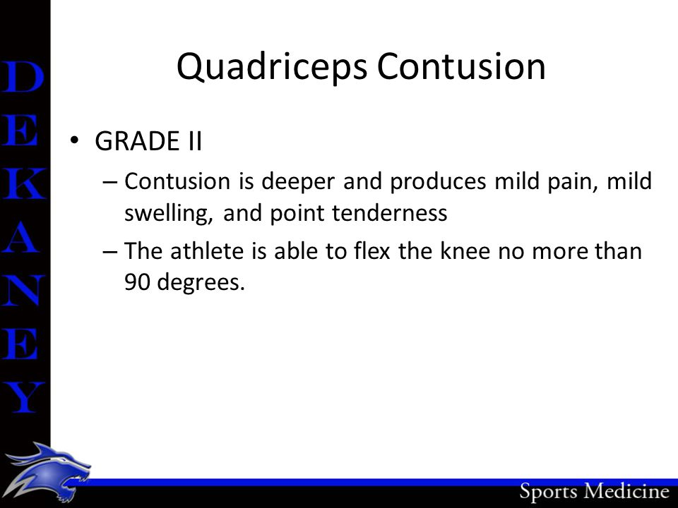 Quadriceps Contusion GRADE II – Contusion is deeper and produces mild pain, mild swelling, and point tenderness – The athlete is able to flex the knee no more than 90 degrees.