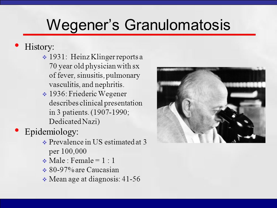 Wegener's Granulomatosis History:  1931: Heinz Klinger reports a 70 year old physician with sx of fever, sinusitis, pulmonary vasculitis, and nephrit