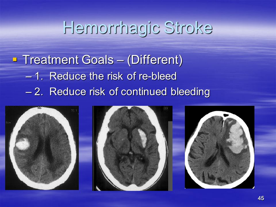 45 Hemorrhagic Stroke  Treatment Goals – (Different) –1.