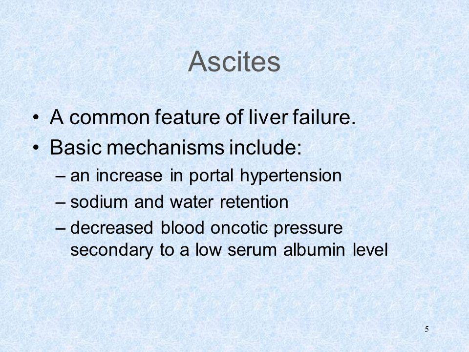 5 Ascites A common feature of liver failure.