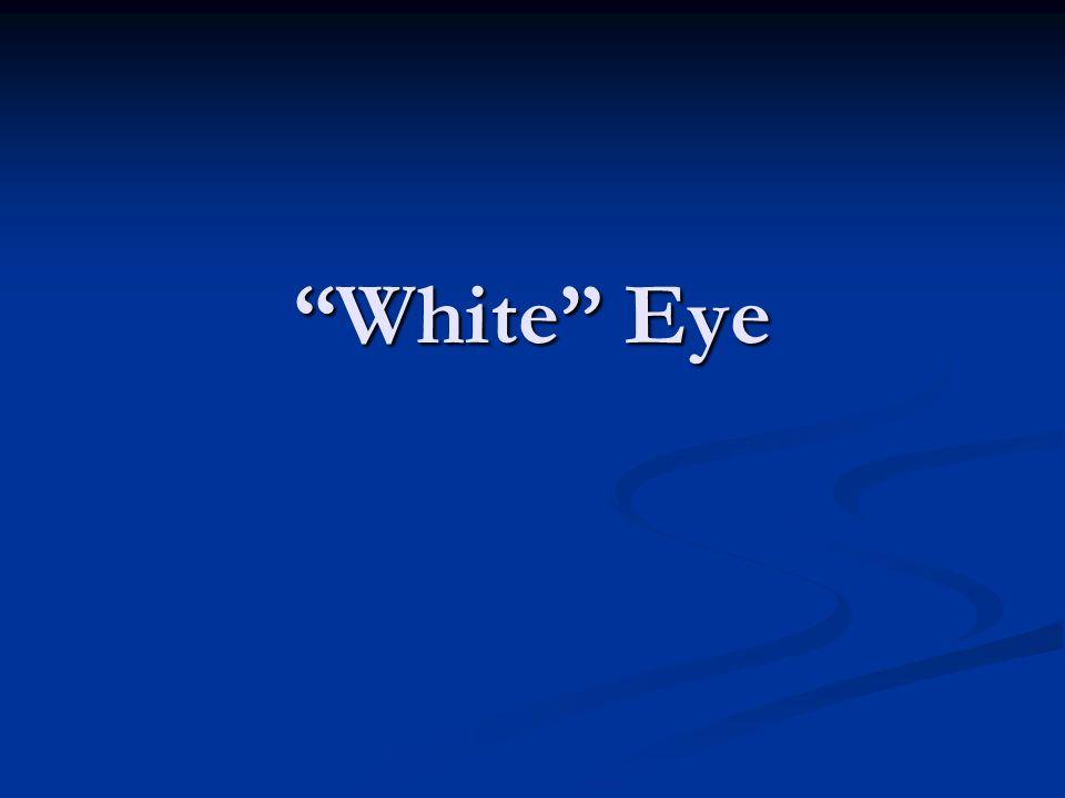 """White"" Eye"