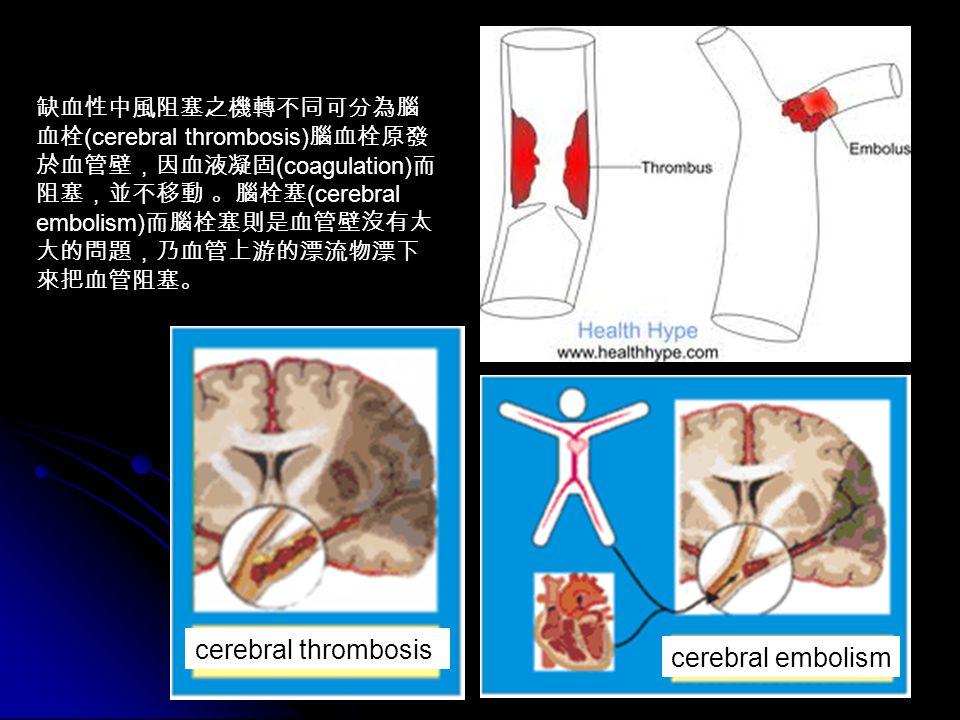 36 缺血性中風阻塞之機轉不同可分為腦 血栓 (cerebral thrombosis) 腦血栓原發 於血管壁,因血液凝固 (coagulation) 而 阻塞,並不移動 。腦栓塞 (cerebral embolism) 而腦栓塞則是血管壁沒有太 大的問題,乃血管上游的漂流物漂下 來把血管阻塞。 cerebral thrombosis cerebral embolism