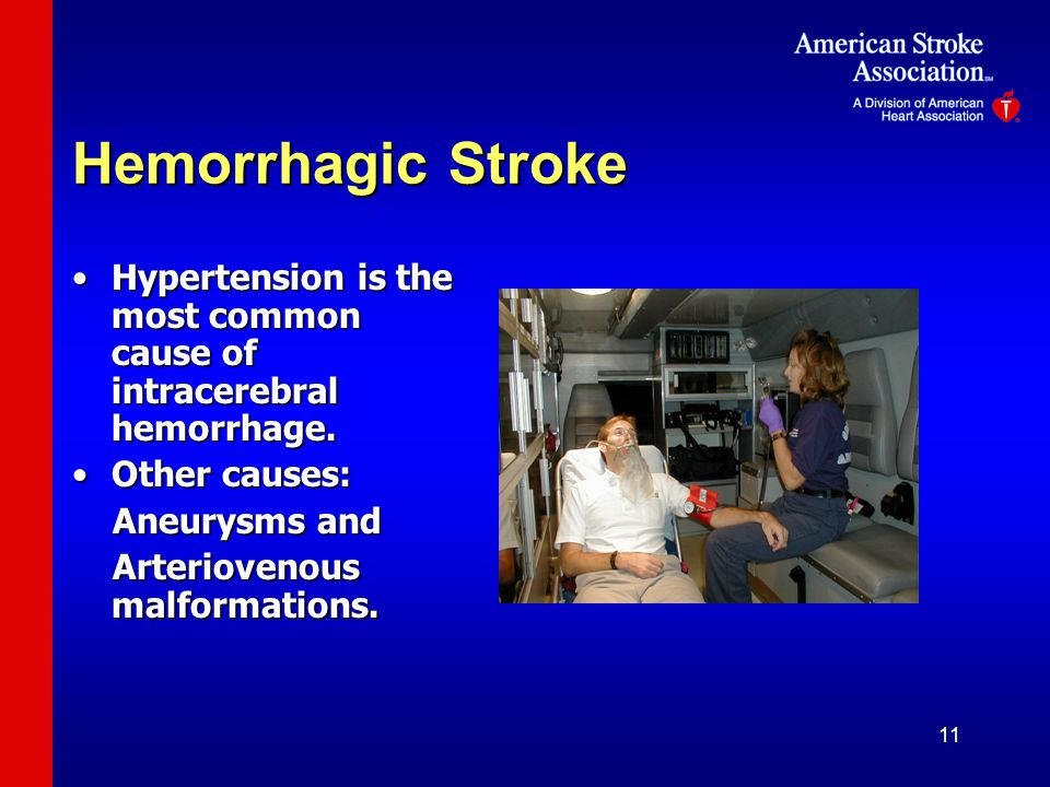 11 Hemorrhagic Stroke Hypertension is the most common cause of intracerebral hemorrhage.Hypertension is the most common cause of intracerebral hemorrhage.