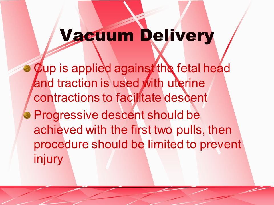 Vacuum Delivery Cup is applied against the fetal head and traction is used with uterine contractions to facilitate descent Progressive descent should be achieved with the first two pulls, then procedure should be limited to prevent injury