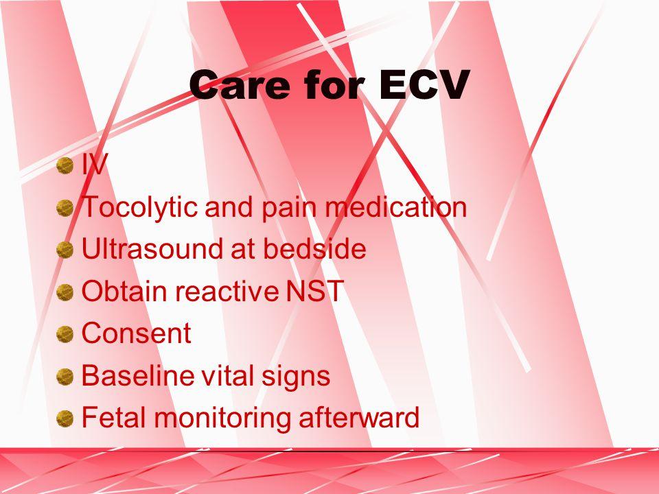 Care for ECV IV Tocolytic and pain medication Ultrasound at bedside Obtain reactive NST Consent Baseline vital signs Fetal monitoring afterward