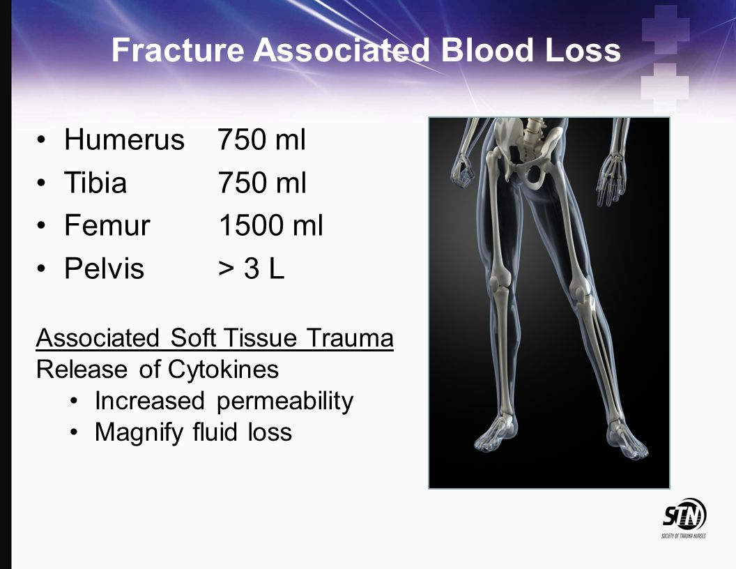 Humerus 750 ml Tibia 750 ml Femur 1500 ml Pelvis > 3 L Fracture Associated Blood Loss Associated Soft Tissue Trauma Release of Cytokines Increased per