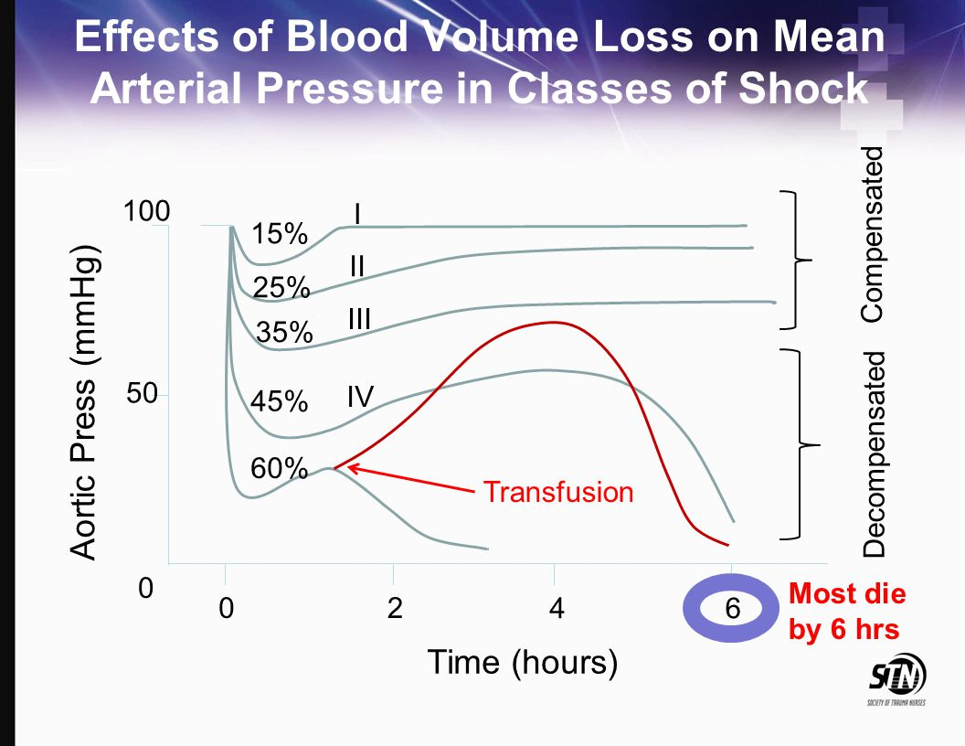 Effects of Blood Volume Loss on Mean Arterial Pressure in Classes of Shock 100 0 Aortic Press (mmHg) 50 02 46 Time (hours) 15% 25% 35% 45% 60% I II II
