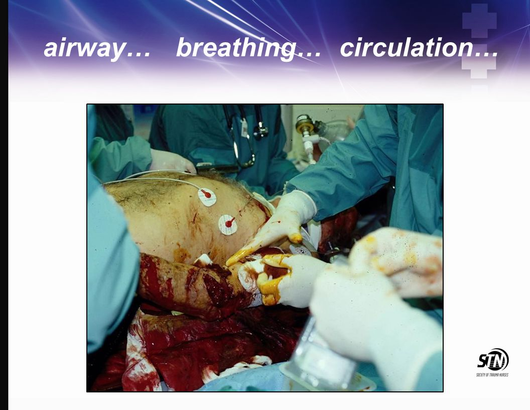 airway… breathing… circulation…