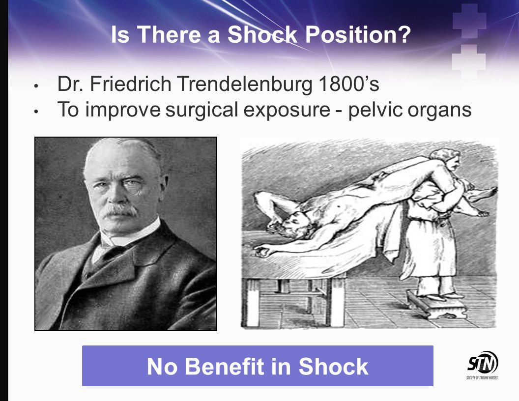 Is There a Shock Position? Dr. Friedrich Trendelenburg 1800's To improve surgical exposure - pelvic organs No Benefit in Shock