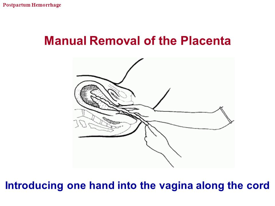 Postpartum Hemorrhage Manual Removal of the Placenta Introducing one hand into the vagina along the cord