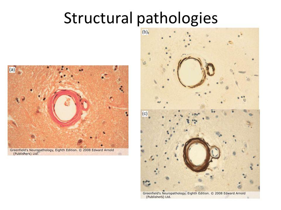 CADASIL Cerebral autosomal dominant arteriopathy with subcortical infarcts and leucoencephalopathy