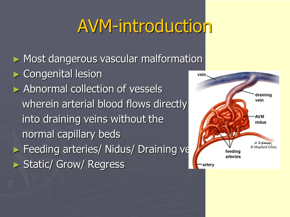 AVM-introduction ► Most dangerous vascular malformation ► Congenital lesion ► Abnormal collection of vessels wherein arterial blood flows directly whe
