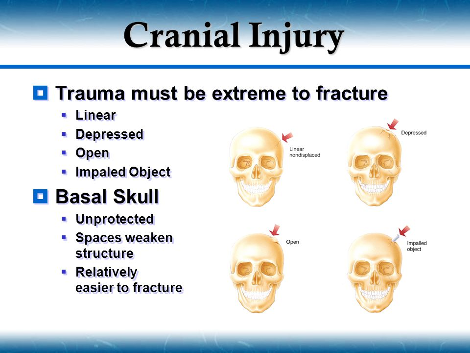 Cranial Injury  Basal Skull Fracture Signs  Battle's Signs  Retroauricular Ecchymosis  Associated with fracture of auditory canal and lower areas of skull  Raccoon Eyes  Bilateral Periorbital Ecchymosis  Associated with orbital fractures  Basal Skull Fracture Signs  Battle's Signs  Retroauricular Ecchymosis  Associated with fracture of auditory canal and lower areas of skull  Raccoon Eyes  Bilateral Periorbital Ecchymosis  Associated with orbital fractures