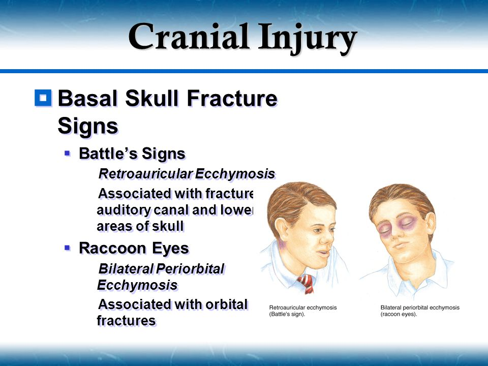  Classic Concussion  Same mechanism as concussion  Additional: Minute bruising of brain tissue  Unconsciousness  If cerebral cortex and RAS involved  May exist with a basilar skull fracture  Signs & Symptoms  Unconsciousness or Persistent confusion  Loss of concentration, disorientation  Retrograde & Antegrade amnesia  Visual and sensory disturbances  Mood or Personality changes  Classic Concussion  Same mechanism as concussion  Additional: Minute bruising of brain tissue  Unconsciousness  If cerebral cortex and RAS involved  May exist with a basilar skull fracture  Signs & Symptoms  Unconsciousness or Persistent confusion  Loss of concentration, disorientation  Retrograde & Antegrade amnesia  Visual and sensory disturbances  Mood or Personality changes Diffuse Brain Injury Moderate Diffuse Axonal Injury