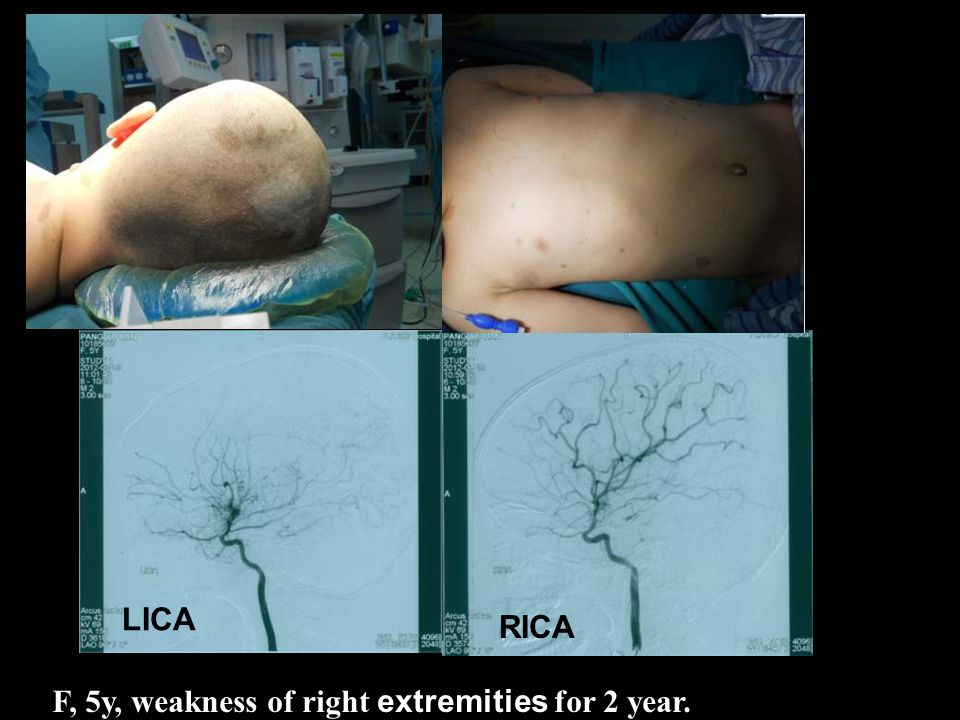 F, 5y, weakness of right extremities for 2 year. LICA RICA