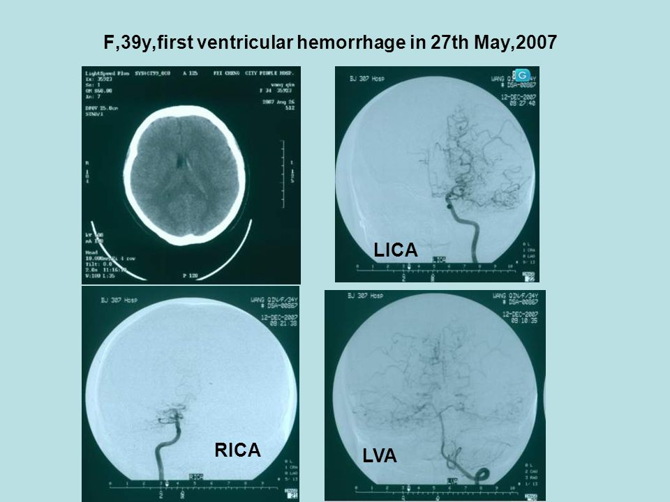 F,39y,first ventricular hemorrhage in 27th May,2007 LICA RICA LVA