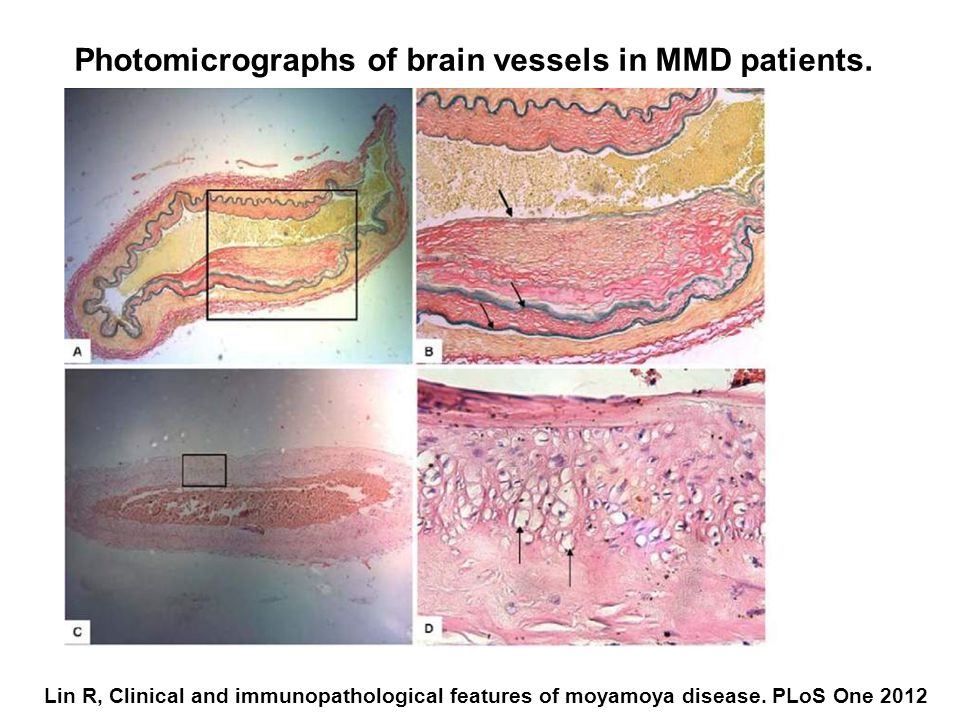 Photomicrographs of brain vessels in MMD patients.