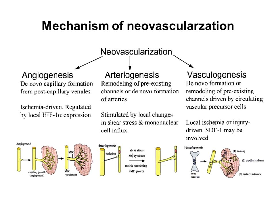 Mechanism of neovascularzation