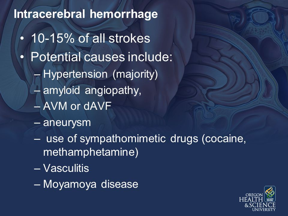Intracerebral hemorrhage 10-15% of all strokes Potential causes include: –Hypertension (majority) –amyloid angiopathy, –AVM or dAVF –aneurysm – use of sympathomimetic drugs (cocaine, methamphetamine) –Vasculitis –Moyamoya disease