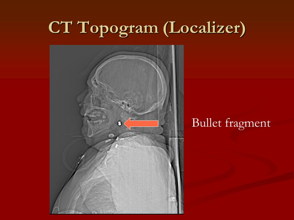 CT Topogram (Localizer) Bullet fragment