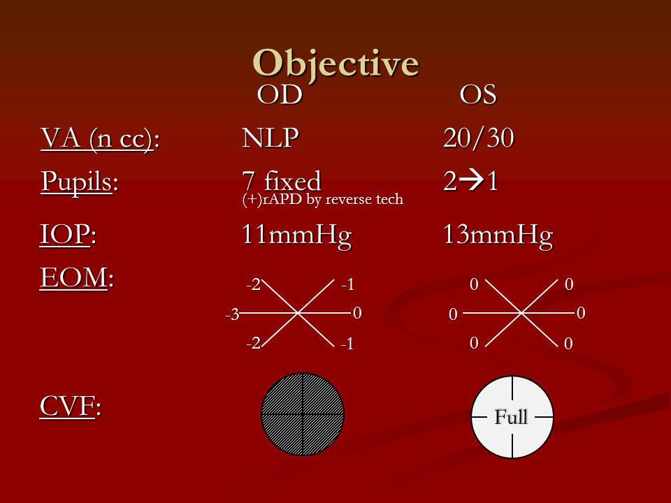 IOP:11mmHg13mmHg EOM: CVF: Objective OD OS OD OS VA (n cc):NLP20/30 Pupils: 7 fixed 2  1 -2-3 -2 000 0 0 0 0 Full (+)rAPD by reverse tech