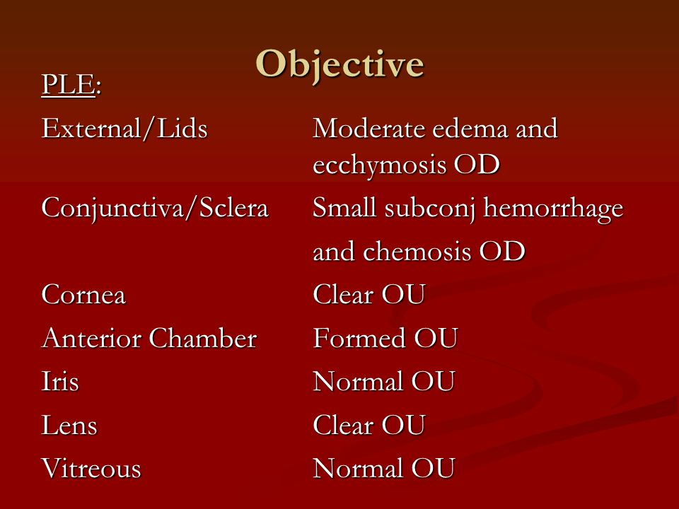 Objective PLE: External/LidsModerate edema and ecchymosis OD Conjunctiva/ScleraSmall subconj hemorrhage and chemosis OD CorneaClear OU Anterior Chambe