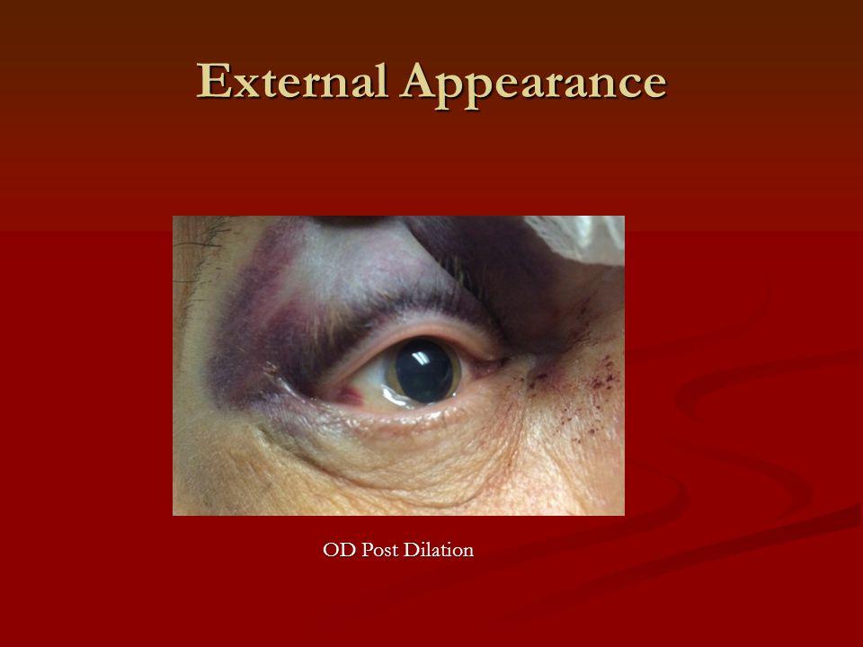 External Appearance OD Post Dilation