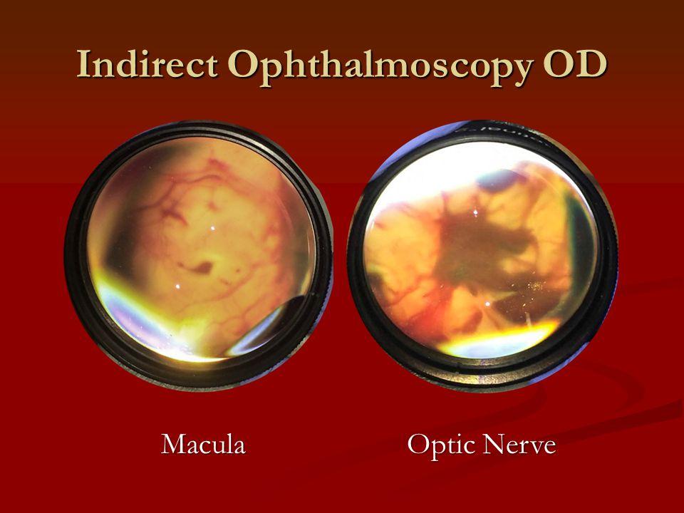 Indirect Ophthalmoscopy OD Optic Nerve Macula