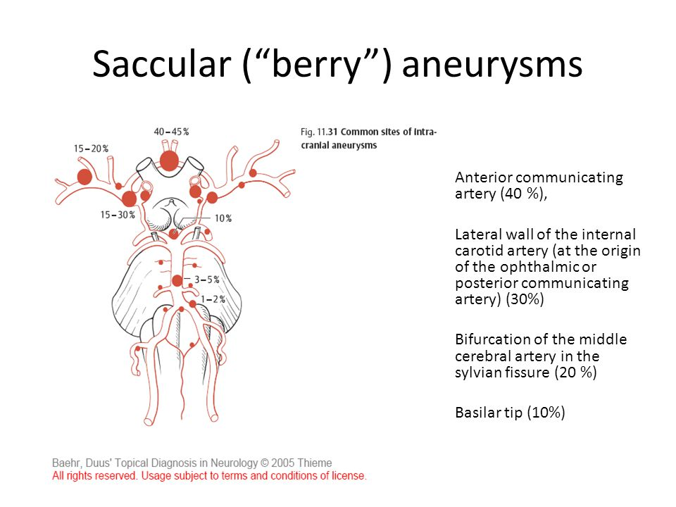 "Saccular (""berry"") aneurysms Anterior communicating artery (40 %), Lateral wall of the internal carotid artery (at the origin of the ophthalmic or pos"