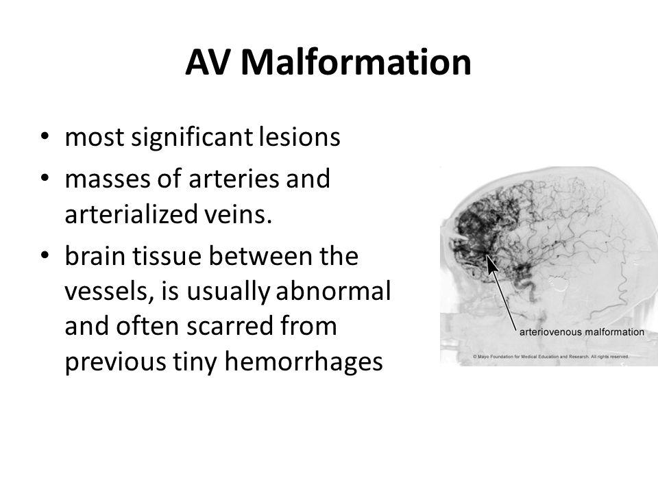 AV Malformation most significant lesions masses of arteries and arterialized veins. brain tissue between the vessels, is usually abnormal and often sc