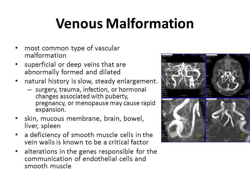 Venous Malformation most common type of vascular malformation superficial or deep veins that are abnormally formed and dilated natural history is slow