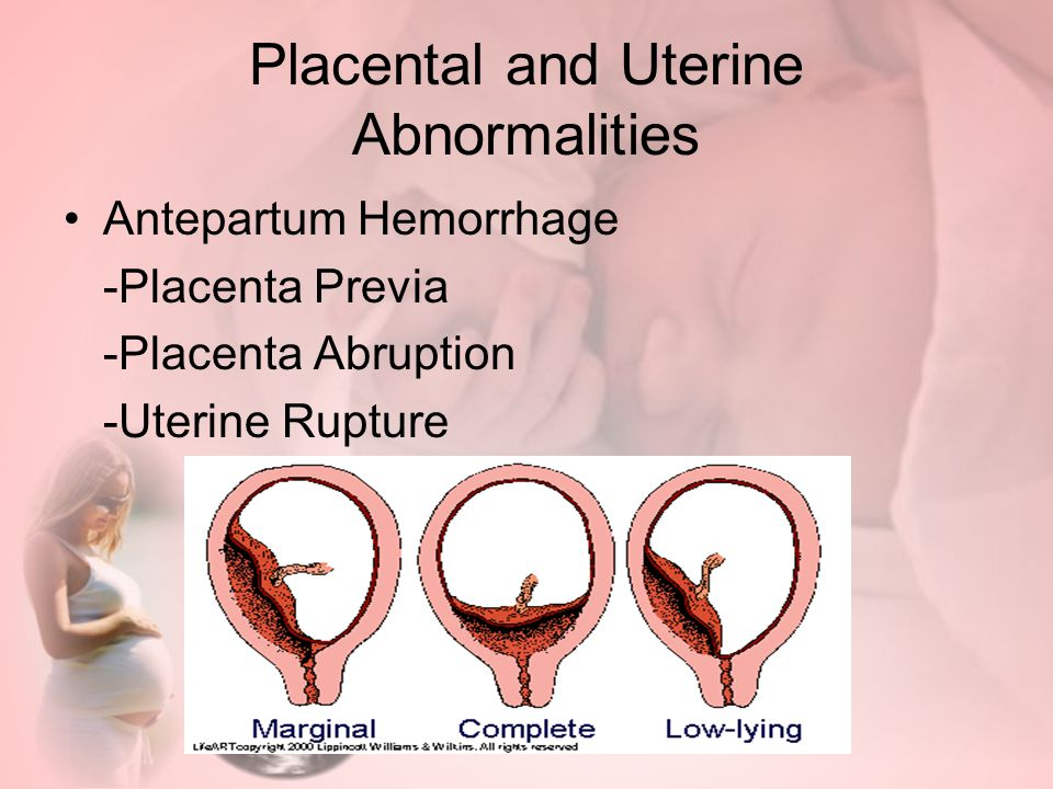 Placental and Uterine Abnormalities Antepartum Hemorrhage -Placenta Previa -Placenta Abruption -Uterine Rupture