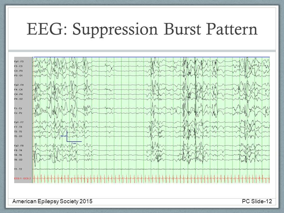 EEG: Suppression Burst Pattern American Epilepsy Society 2015PC Slide-12