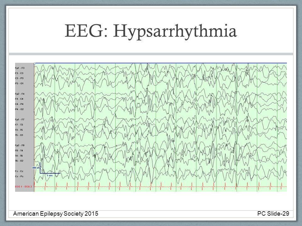 EEG: Hypsarrhythmia American Epilepsy Society 2015PC Slide-29