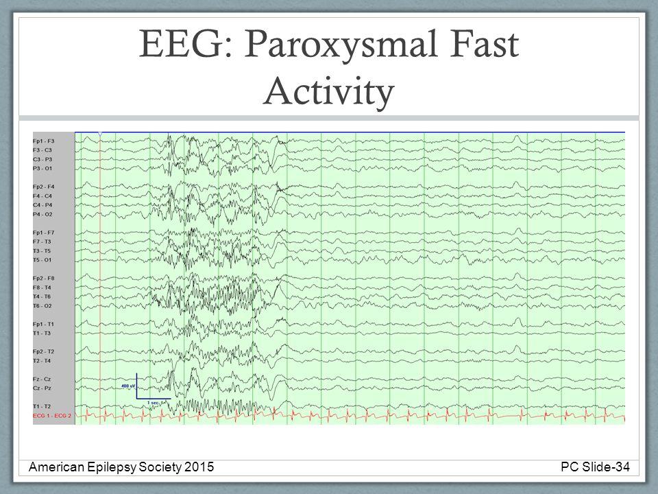 EEG: Paroxysmal Fast Activity American Epilepsy Society 2015PC Slide-34
