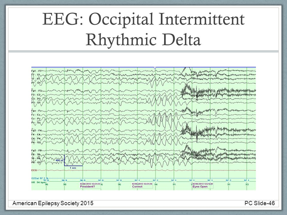 EEG: Occipital Intermittent Rhythmic Delta American Epilepsy Society 2015PC Slide-46