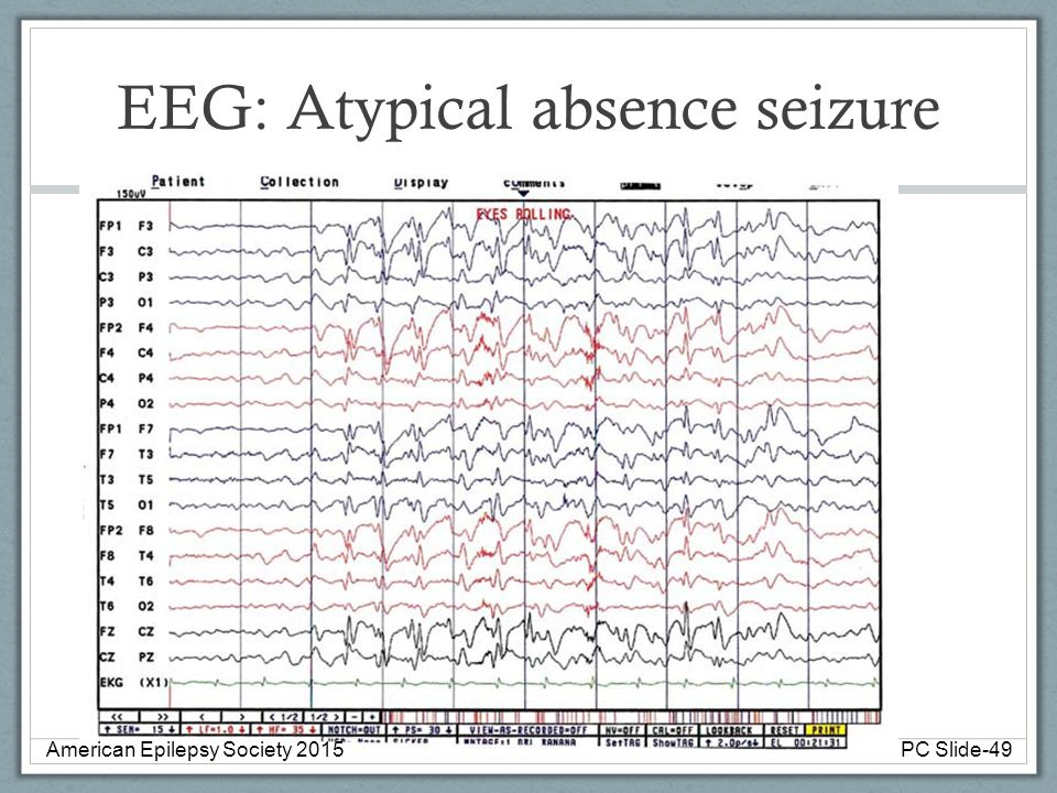 EEG: Atypical absence seizure American Epilepsy Society 2015PC Slide-49