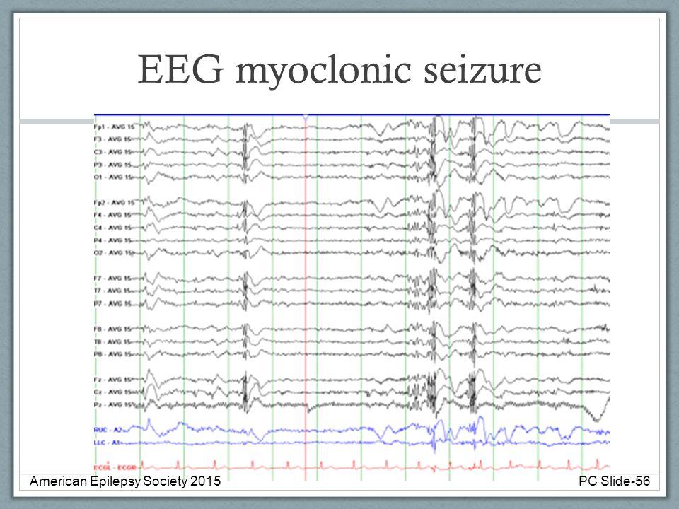 EEG myoclonic seizure American Epilepsy Society 2015PC Slide-56