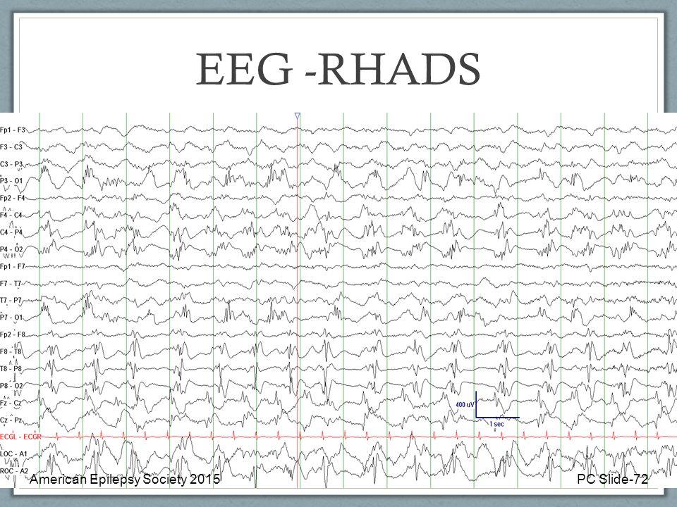 EEG -RHADS American Epilepsy Society 2015PC Slide-72
