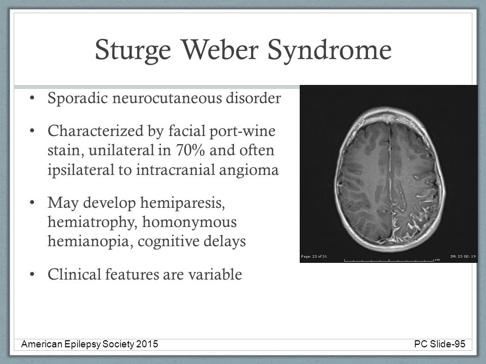 Sturge Weber Syndrome Sporadic neurocutaneous disorder Characterized by facial port-wine stain, unilateral in 70% and often ipsilateral to intracrania