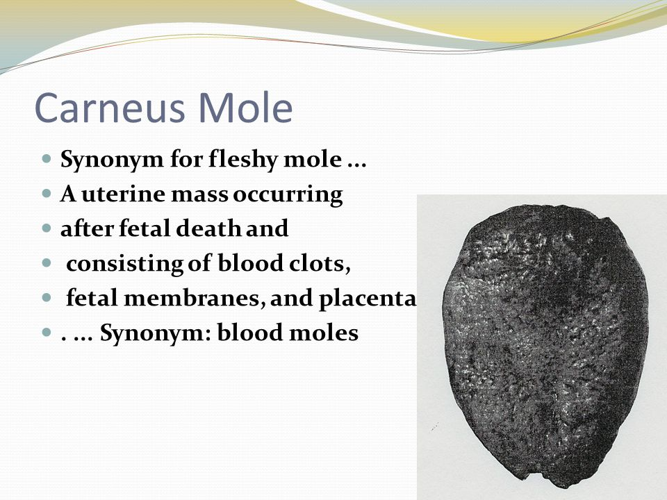 Carneus Mole Synonym for fleshy mole... A uterine mass occurring after fetal death and consisting of blood clots, fetal membranes, and placenta.... Sy