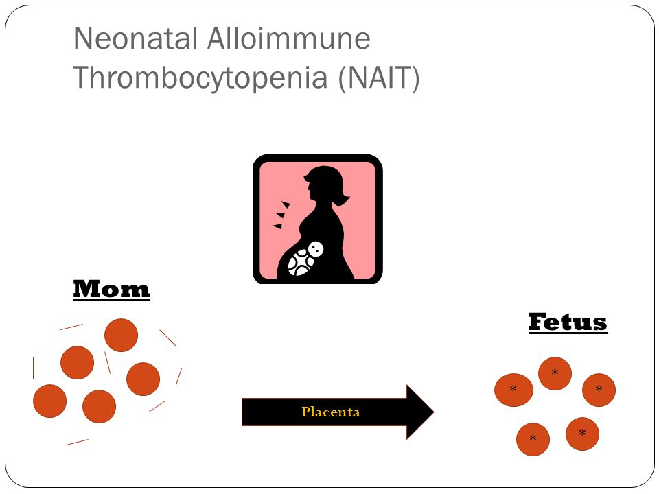 Neonatal Alloimmune Thrombocytopenia (NAIT) Mom Fetus * * * * * Placenta