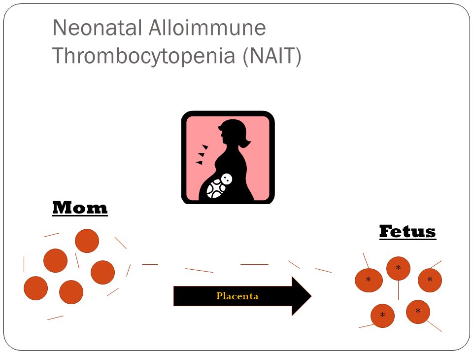 Would you treat the severe thrombocytopenia in NAIT.