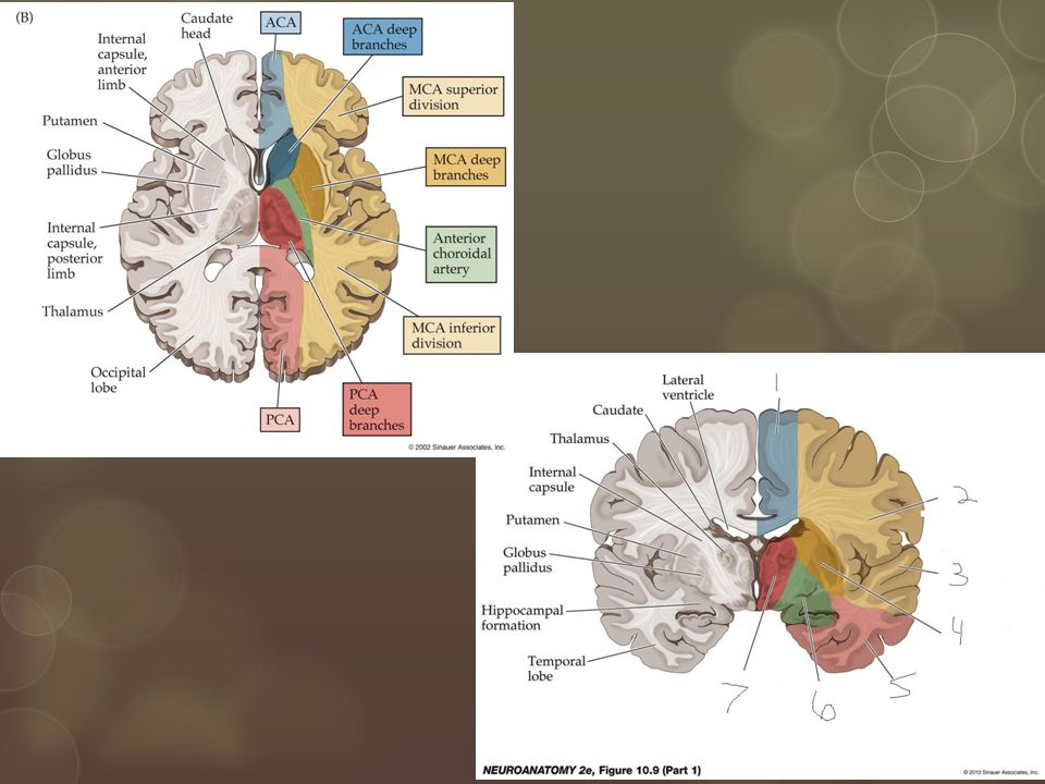 Right Hemisphere Stroke  Both cortical and subcortical strokes:  Lt hemiparesis  Lt sensory loss  Cortical strokes also include:  Lt spatial neglect  Lt homonymous hemianopsia  Impaired Lt conjugate gaze
