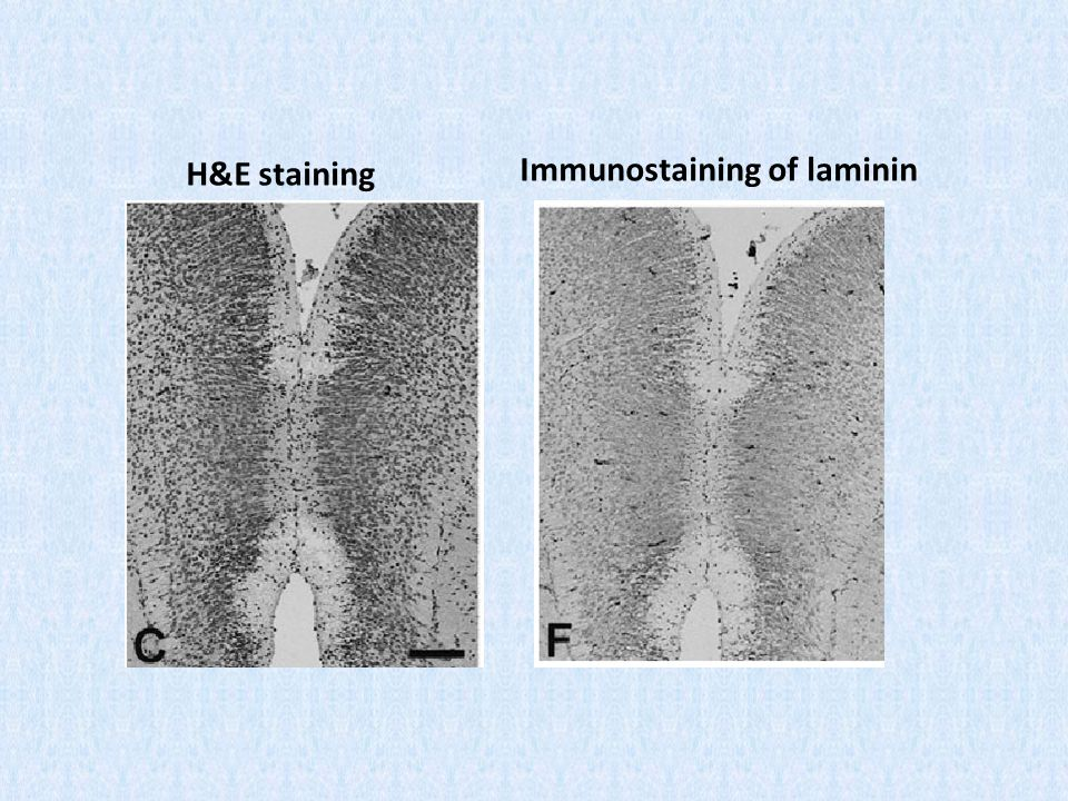 Immunostaining of laminin H&E staining