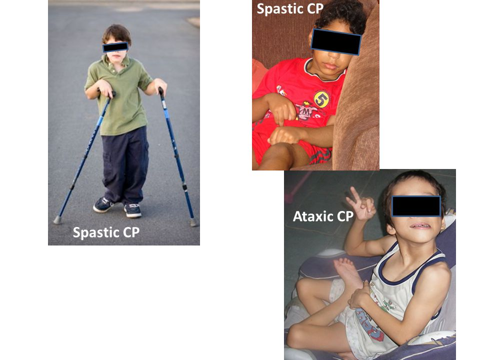 Ataxic CP Spastic CP